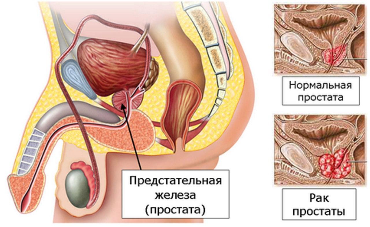 Рак простаты: причины, признаки, диагностика, лечение, прогноз и профилактика