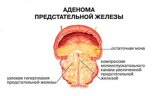 Рецепты применения коры осины при аденоме простаты