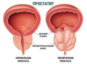 Самые эффективные методы лечения хронического простатита народными средствами