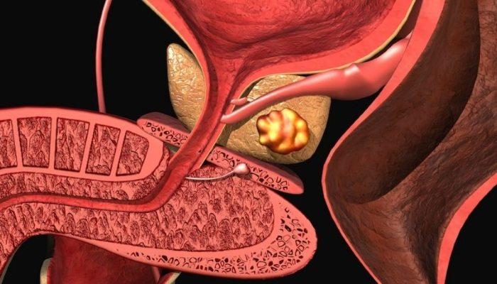 Самые распространенные виды простатита у мужчин и их симптомы