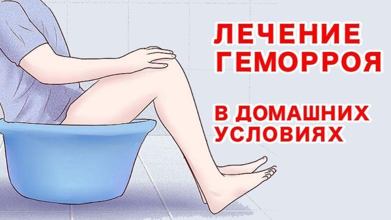 Шишки геморроя: как быстро убрать в домашних условиях