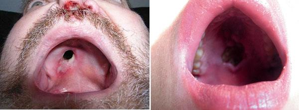 Сифилис во рту: почему возникает и как проявляется.