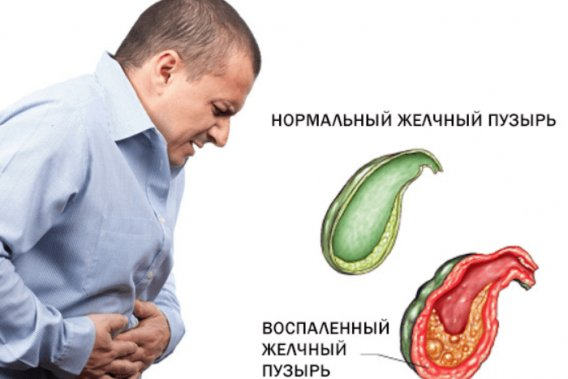 Симптомы и лечение воспаления желчного пузыря