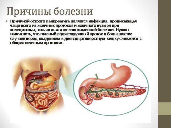Симптомы проблемы с поджелудочной железой