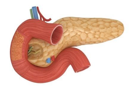 Стеатоз поджелудочной железы: что это такое