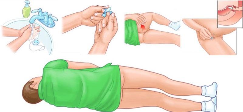 Как вводить свечи от простатита ректально домашние лечение от простатита