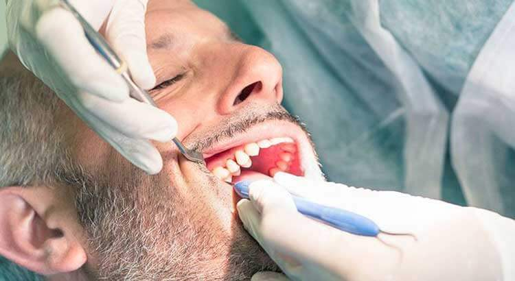 Свищ после удаления зуба — традиционные и народные способы терапии