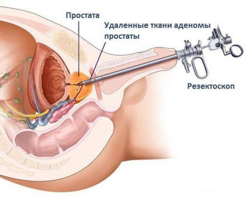 Трансуретральная резекция простаты (ТУР): показания, противопоказания, ход операции