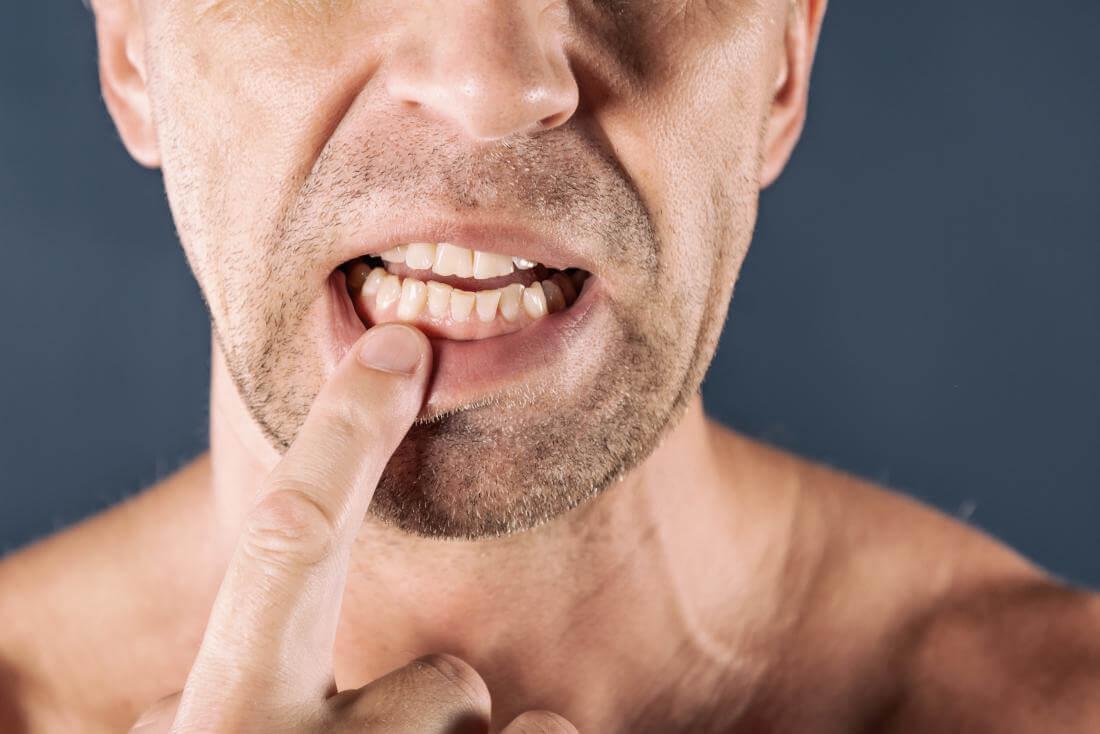 Твердая шишка на десне — почему появляется и как лечится