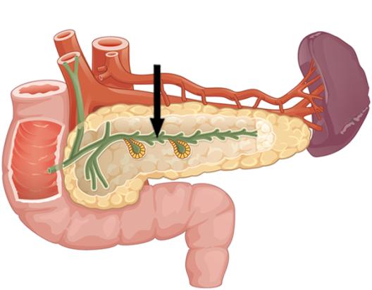 Поджелудочная железа вирсунгов проток не визуализируется