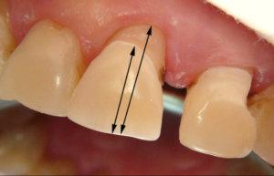 Выпал передний зуб, что делать ребенку или взрослому