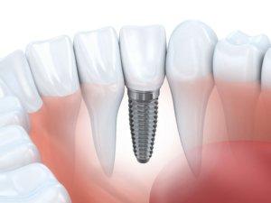Зубной имплантат: цены на зубное протезирование