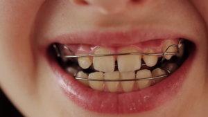 Зубные пластины: особенности применения и правила ухода