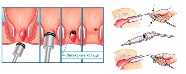 5 способов лечения геморроя без операции навсегда