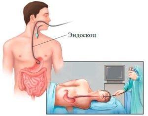 Аэрофагия - что это такое, симптомы и лечение
