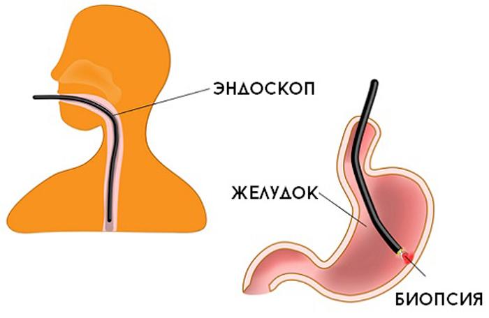 Биопсия желудка: что это такое, расшифровка результатов, подготовка к исследованию