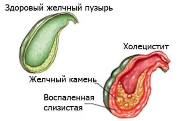 Боль при различных видах холецистита