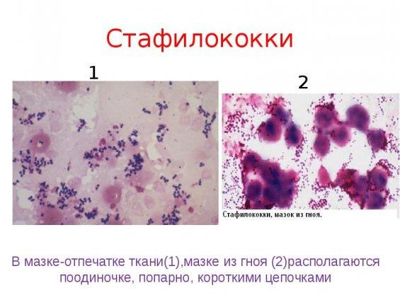 Чем можно лечить кишечную инфекцию у детей?