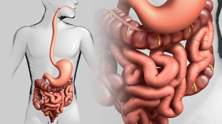 Динамическая кишечная непроходимость - причины и лечение