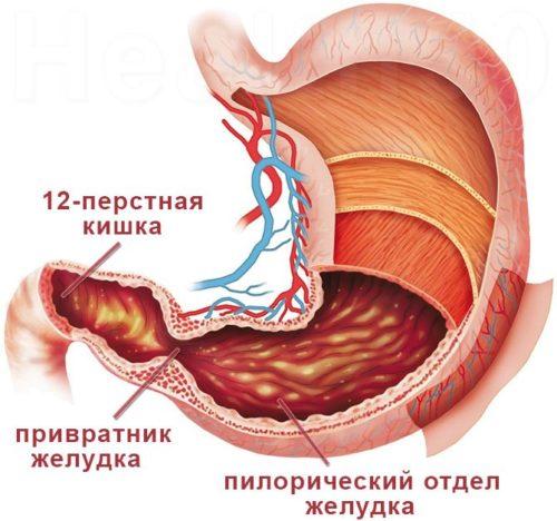 Эрозивный гастродуоденит - что это такое, симптомы и лечение