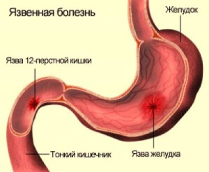 Хронический бульбит. Основные симптомы и виды бульбита