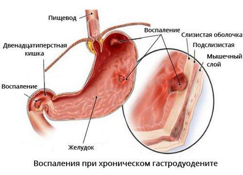 Хронический гастродуоденит - симптомы и лечение