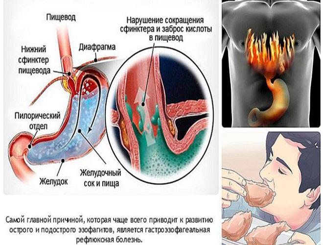 Как навсегда вылечить рефлюкс эзофагит: профилактика и симптомы