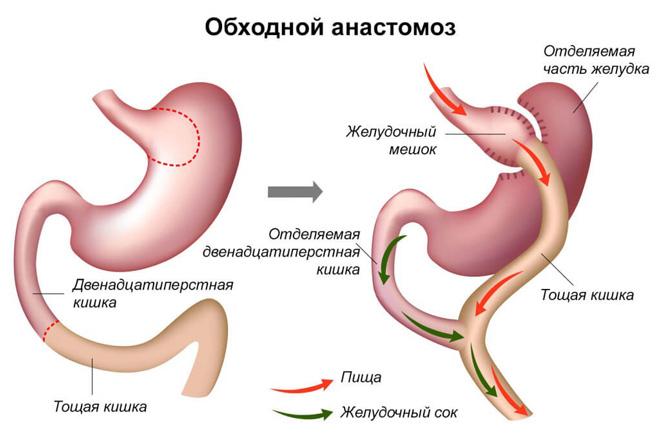 Как осуществляется нейрогуморальная регуляция отделения желудочного сока