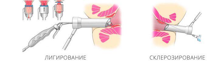 Лечение запущенного геморроя: 3 варианта терапии