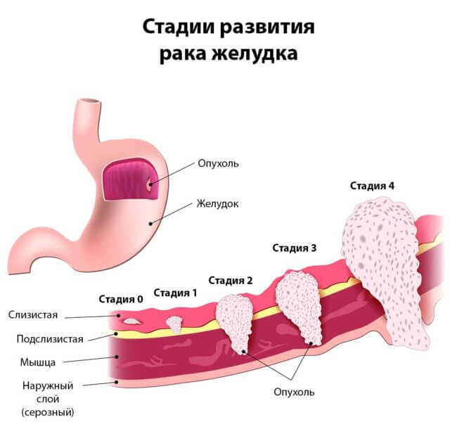 Лечится ли рак желудка, причины развития, стадии, прогноз и выживаемость