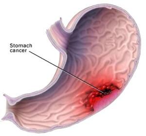Лейомиома желудка: причины, симптомы, лечение