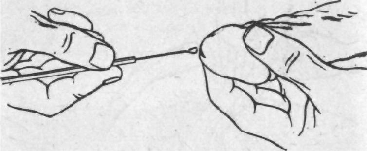 Мазок на трихомониаз – какими методами берут и как подготовиться.
