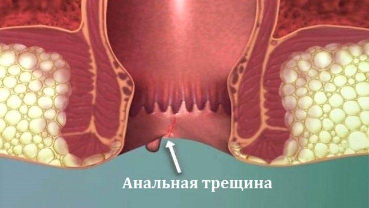Осложнения геморроя: 8 опасных последствий заболевания