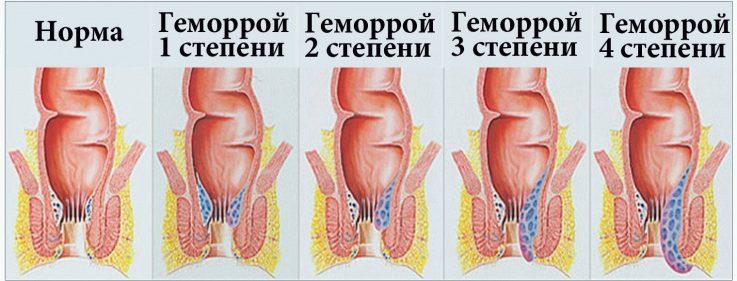 Основные стадии геморроя: симптомы, методы лечения и эффективные препараты