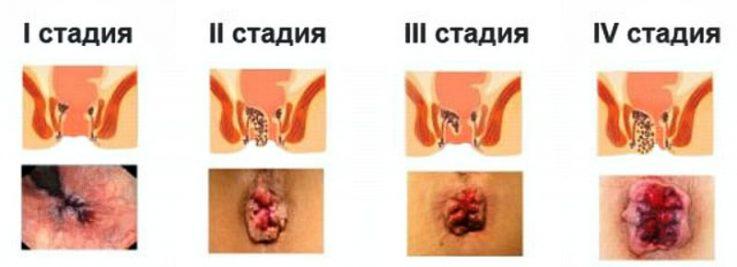 Особенности лечения геморроя по методу Кондакова