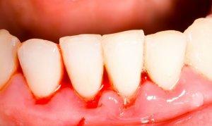От чего привкус железа во рту: причины явления и лечение