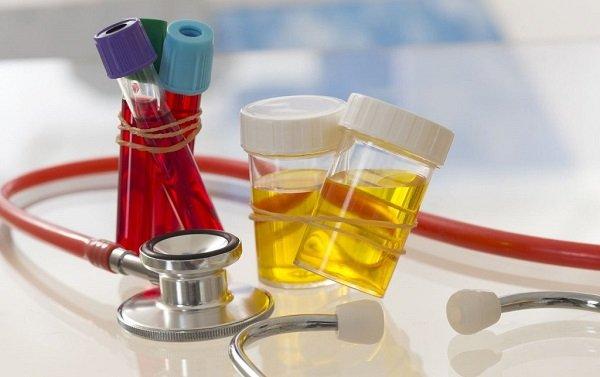 Панкреатит при беременности: симптомы, лечение и питание