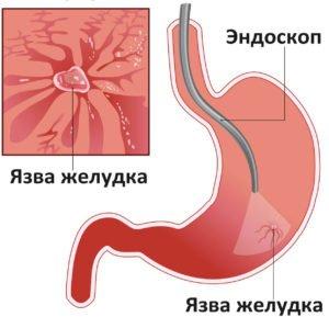 Первые симптомы язвы желудка на ранних стадиях