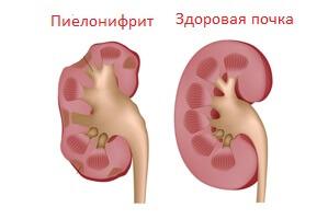 Почему болит в правом подреберье: заболевания, для которых этот симптом характерен