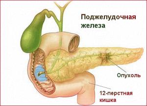 Почему болит живот под ребрами? Самые распространенные причины