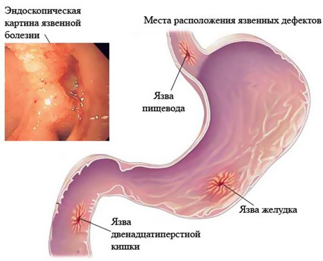 Показания и противопоказания лекарства Омепразол-Акри