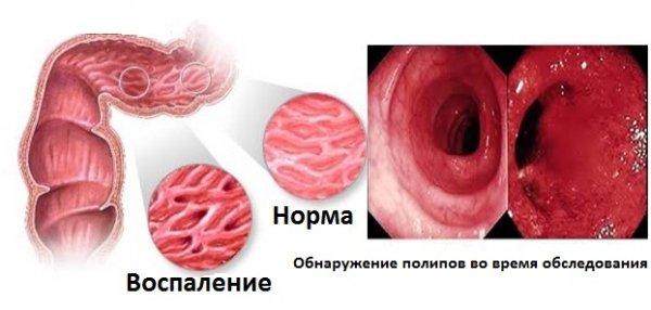 Полипы в кишечнике: признаки, симптомы, лечение у взрослых