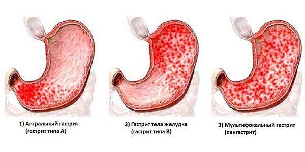 Признаки и лечение гастрита с повышенной кислотностью