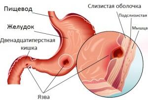 Прободная язва желудка: проявление, хирургическое вмешательство и лечение