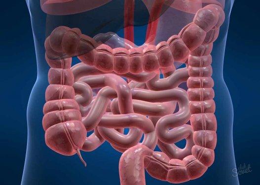 Симптомы и лечение дисплазии кишечника
