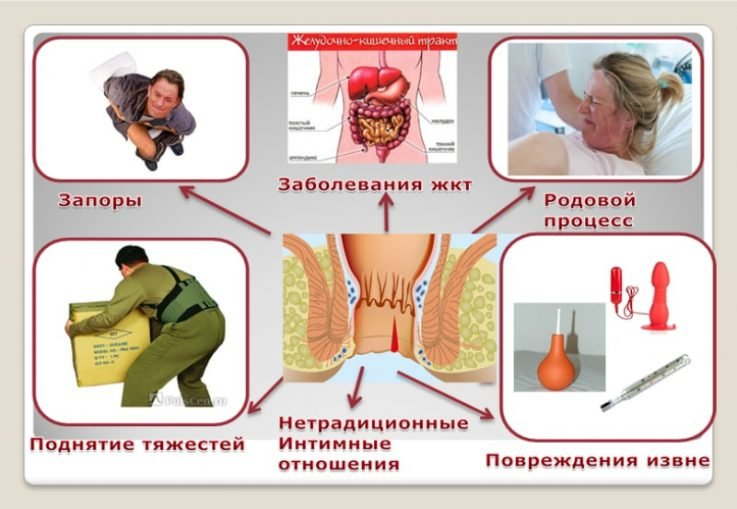 Симптомы и лечение хронического комбинированного геморроя