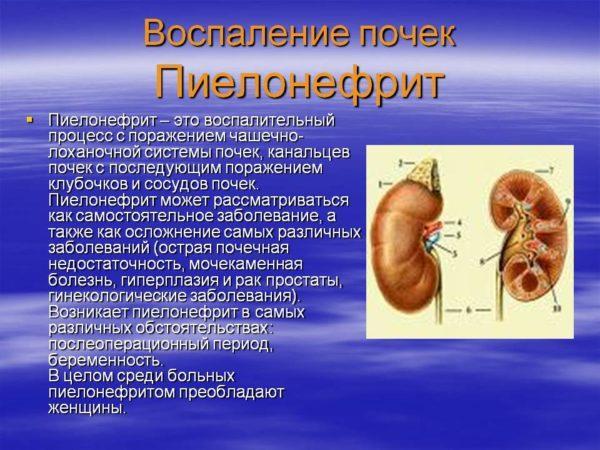 Симптомы заболевания почек у женщин