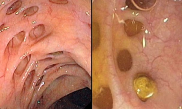 Способы лечения дивертикулеза кишечника
