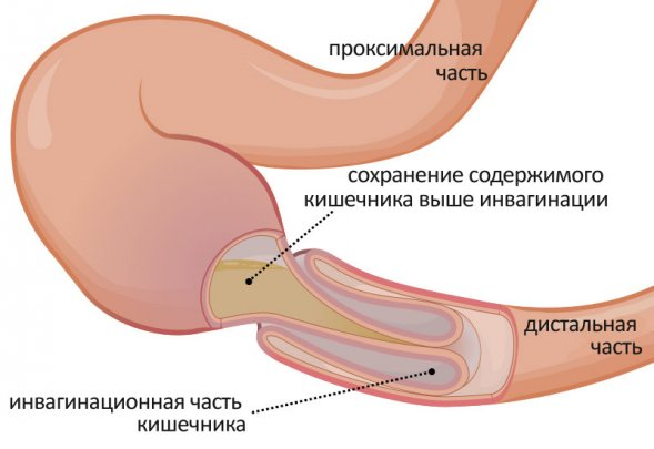 Странгуляционная кишечная непроходимость