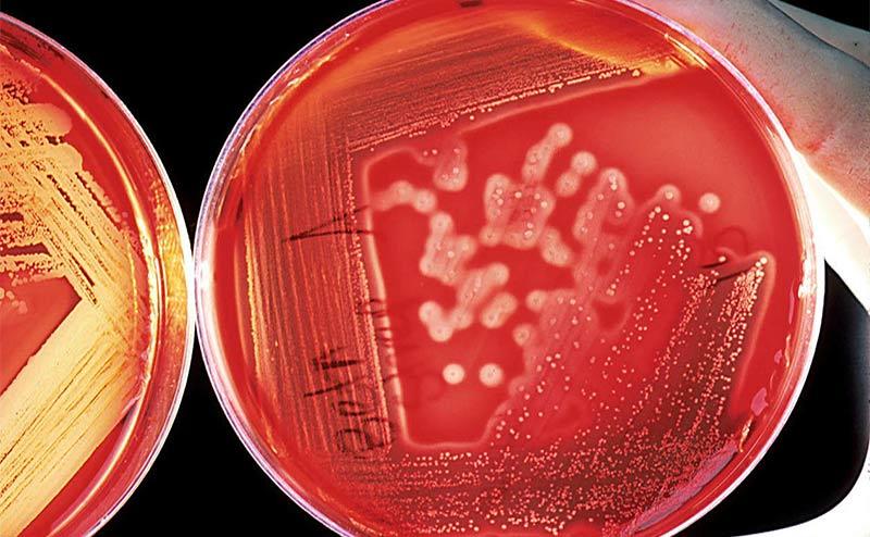 Азитромицин: показания к применению, состав, свойства, побочные реакции